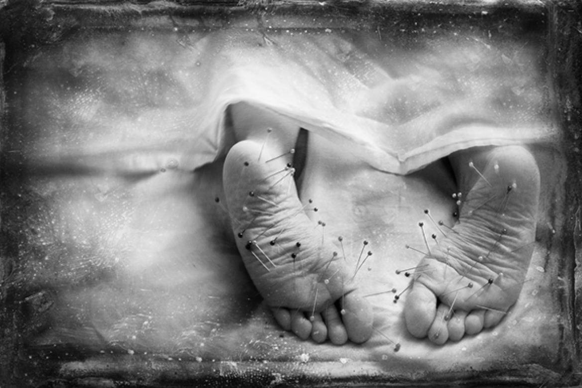 black and white photo of barefeet with pins in them under bed sheets